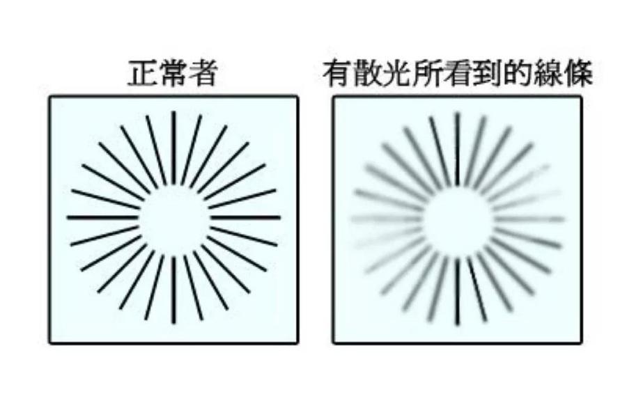 散光:前因、后果,与隐形眼镜佩戴者的抉择
