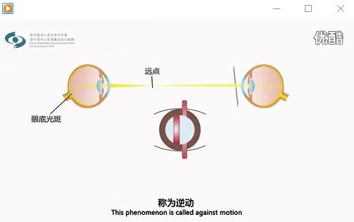 视频眼科临床常规检查方法 检影验光
