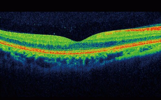 Covid安全眼科检查是什么样的?